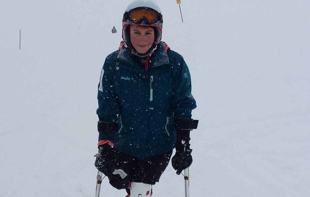 """""""Ski-Ass Christoph hat nur ein Bein"""""""